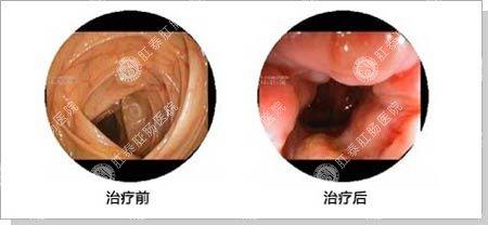 电子肠镜影像检查